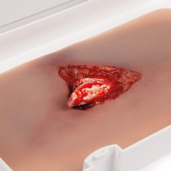 Wundmoulage Offener Beinbruch mit Blutungsfunktion